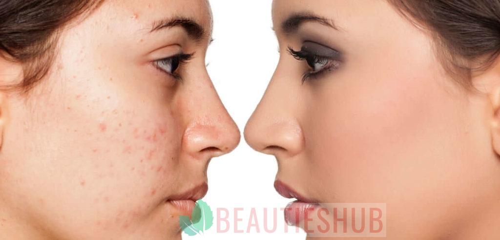 انواع التهاب الجلد الدهنى