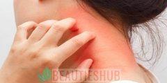 الفرق بين الصدفية والتهاب الجلد الدهنى